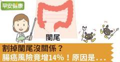 割掉闌尾沒關係?腸癌風險竟增14%!原因是...