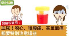 血尿!噁心、後腰痛、甚至無痛,都要特別注意這些
