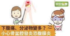 下腹痛、分泌物變多?小心骨盆腔發炎恐腹膜炎