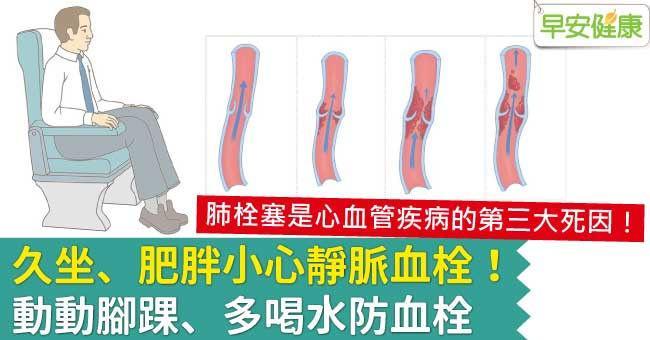 久坐、肥胖小心靜脈血栓!動動腳踝、多喝水防血栓