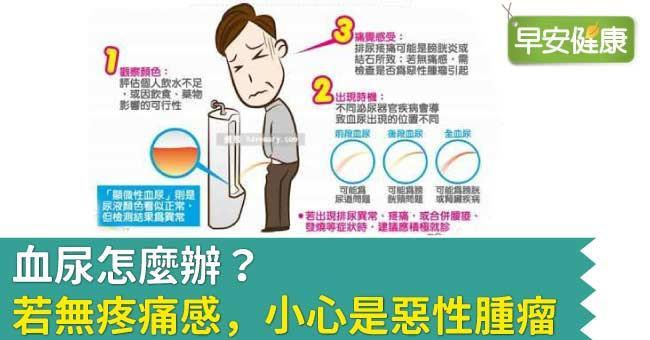 血尿怎麼辦?若無疼痛感,小心是惡性腫瘤
