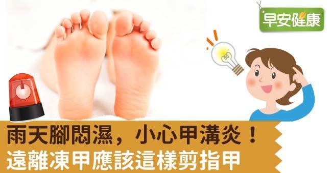 雨天腳悶濕,小心甲溝炎!遠離凍甲應該這樣剪指甲