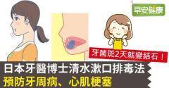日本牙醫博士清水漱口排毒法,預防牙周病、心肌梗塞