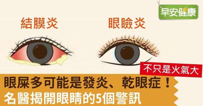 眼屎多可能是發炎、乾眼症!名醫揭開眼睛的5個警訊