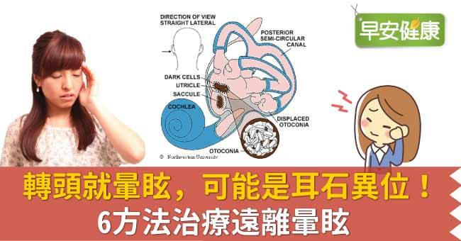 轉頭就暈眩,可能是耳石異位!6方法治療遠離暈眩
