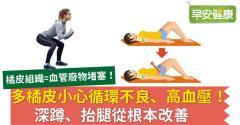 多橘皮小心循環不良、高血壓!深蹲、抬腿從根本改善