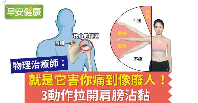 肩夾擠症候群如何自救?肩痛是肩膀拉傷嗎?物理治療師:3動作拉開肩膀沾黏