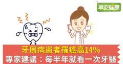 牙周病患者罹癌高14%,專家建議:每半年就看一次牙醫