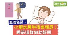 小腿水腫半夜會頻尿!睡前這樣做助好眠